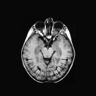 Nervus-opticus-Marta-J.-Strzoda-FF2012